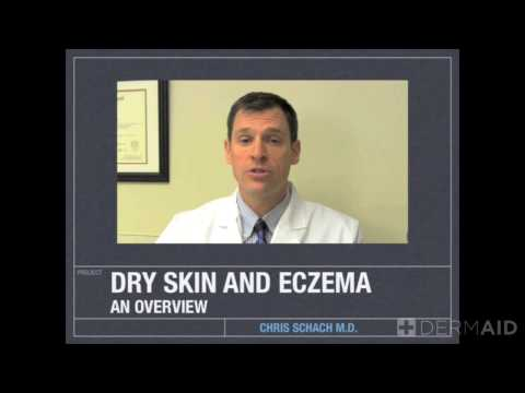 Dry Skin Overview