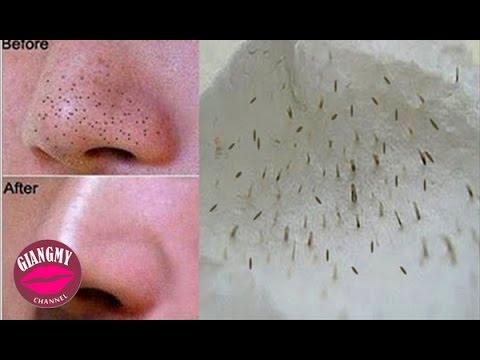 Mẹo Làm Đẹp | Cách Làm Trắng Da – Loại Bỏ Mụn Tại Nhà | Giang My Channel