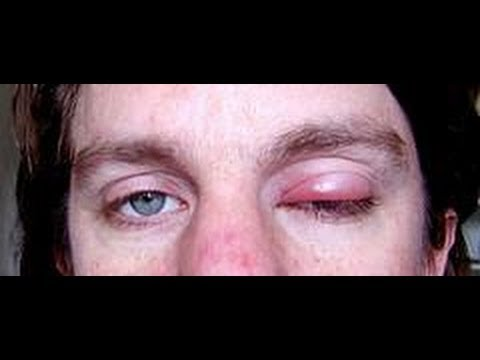 how to cure eye infection fast