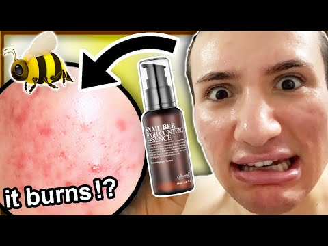 I tried Benton Snail Bee High Content Essence for ONE WEEK!! (this bee venom is dangerous...)