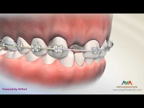 Missing Lateral Incisor - Treatment Options - Orthodontic & Restorative Treatment