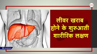 Early physical symptoms of liver damage-लीवर खराब..