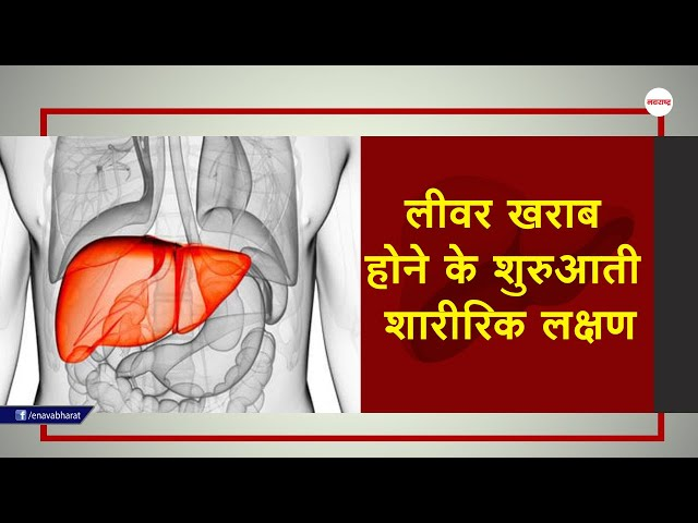 Early physical symptoms of liver damage-लीवर..