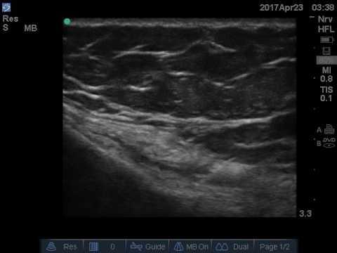 Ultrasound guided pes anserine bursitis injection.
