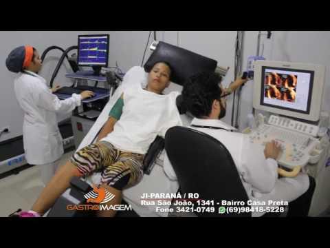 Ecocardiograma sob Estresse Físico com Ciclomarca com Dr. Marcelo Salame