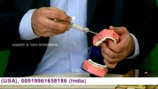 Mini Screw Implant (TAD)