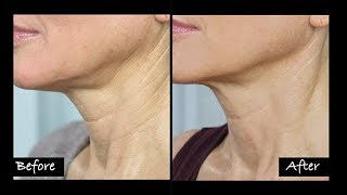 Video My Experience Getting Ultherapy | Non-Surgical Neck Lift? | Before & After MP3, 3GP, MP4, WEBM, AVI, FLV September 2019