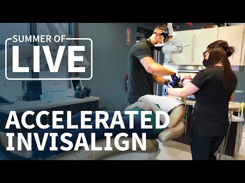 Miss Springfield gets Accelerated INVISALIGN at Innovative Dental!