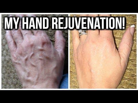 💝  HOW TO TREAT HAND VEINS 💝