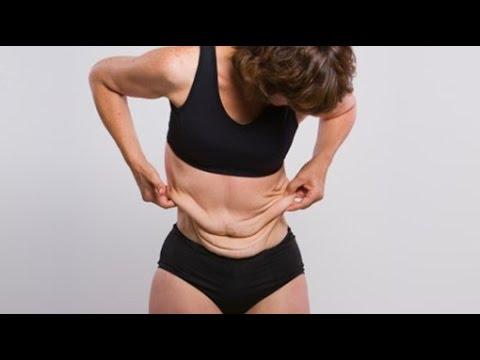 Piel en exceso al perder peso,como evitarla! y uso de las proteínas
