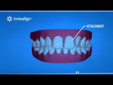 Invisalign | Treatment Steps | Orthodontic Video Production
