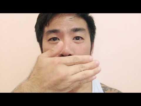 Asian guy on 5% liquid minoxidil. 6 weeks progress.