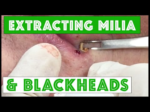 "Extracting Milia & Blackheads On ""mrs Wilson"""