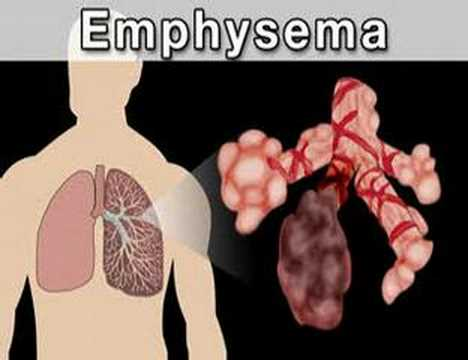 An Overview of COPD; Symptoms, Diagnosis and Treatment
