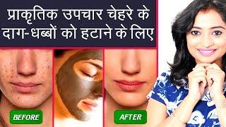 Watch More - https://goo.gl/ptrda7प्राकृतिक उपचार चेहरे के दाग-धब्बों को हटाने के लिए  Natural Home Remedies to Remove Dark Spots -In this Video, I will tell you natural Home Remedies to Remove Dark Spots on Face. Chehare ke daag-dhabbe hatane ke upay janane ke liye ye video dekhe.Lemon Juice Helps to Remove Dark Spots on FaceChandan Powder Mix with Rose Water is Beneficial to Get Rid of Dark SpotsCinnamon Powder and Honey Paste is Helpful to Remove Spotsनींबू का रस चेहरे के काले दाग-धब्बे दूर करने में मदद करता हैगुलाब जल के साथ चंदन पाउडर का मिश्रण दाग-धब्बों से छुटकारा पाने के लिए फायदेमंद हैदालचीनी पाउडर और शहद की पेस्ट दाग-धब्बों को दूर करने के लिए उपयोगी हैaur tips janane ke liye ye video dekhe.Please like, share and subscribe to our channel.