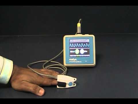 Melys Atrial Fibrillation Monitor