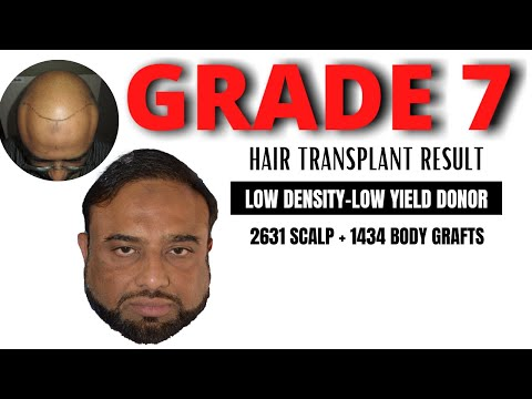 Grade 7 baldness | Low density Low Yield Donor | 2631 scalp+1434 body grafts hair transplant result