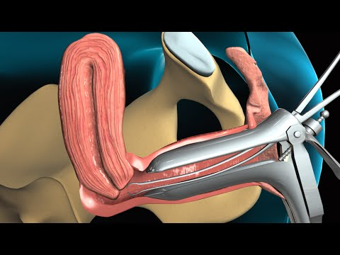 endometrium - View more AMAZING medical animations at http://www.nucleuslibrary.com To download FREE medical animations of pregnancy and birth, visit http://www.prenateper...