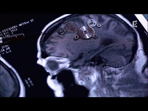 8-accidents.vasculaires.cerebraux.les.bons.reflexes.enquete.de.sante.le.documentaire