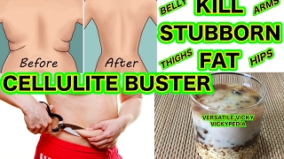 How to Get Rid of Cellulite Naturally At Home  Cellulite Removal Cellulite Buster  Kill Stubborn Fat  जमी हुई चर्बी हटाये  Kill Stored Fat  Cellulite Tr...