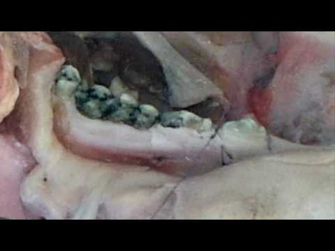 Практикум по пластике мягких тканей десны в области зубов и имплантатов. Часть 6