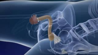 Video Phẫu thuật chuyển giới từ nam sang nữ như thế nào? MP3, 3GP, MP4, WEBM, AVI, FLV Januari 2019