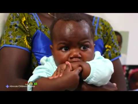 Baby born with four legs returns home after surgery