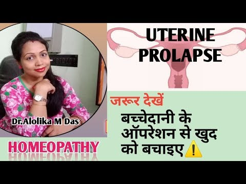 #No to uterine surgery.Best Homeopathic medicines of uterine prolapse. видео