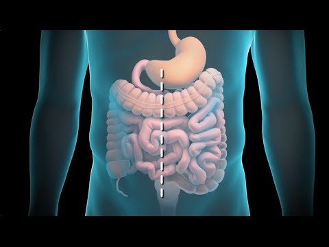 Colon Surgery - If you like this animation, LIKE us on Facebook: http://www.nucleusinc.com/facebook http://www.nucleusinc.com/medical-animation This 3D medical animation sho...