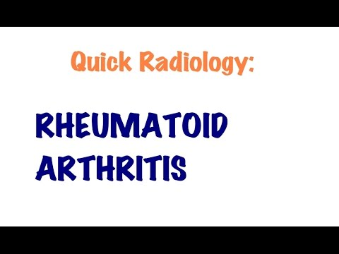 QUICK RADIOLOGY: Radiologic signs of Rheumatoid arthritis