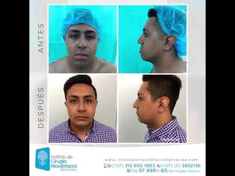 Instituto De Cirugía Maxilofacial Del Caribe   Cirujano, Odontólogo