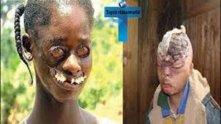 Top 10 Most Bizarre People In The World You Won't Believe Actually Exist