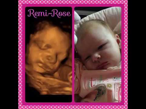 Before and after birth likeness Ultrasound baby scan. Window to the Womb Ltd
