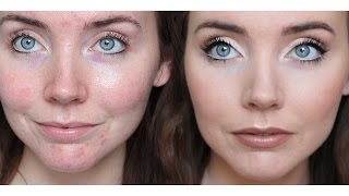 """Previous Drugstore Foundation Routine (not cruelty-free)https://youtu.be/vNQlN2d5QN4Hey there, thanks for checking out my video. Since the production value of YouTube videos has increased significantly, it's not often that we see makeup tutorials without artificial lighting and colour grading. Meaning, we can't see the natural texture of the skin and we think """"beauty gurus"""" are flawless. I wanted to show you, as best as possible, what my skin really looks like. This is a realistic foundation routine for acne. I like to wear a light foundation and focus on concealer, rather than wearing a full-coverage foundation. All the products used are cruelty-free as well.Products Used:Cover FX Correct Click: Green and Peach https://www.coverfx.ca/correct-click.htmlUrban Decay Naked Skin Foundation: Shade 3.5http://www.sephora.com/naked-weightless-ultra-definition-liquid-makeup-P374830?skuId=1434919&icid2=products grid:p374830NYX HD Concealer: Shades CW02 Fair and CW03 LIght http://www.nyxcosmetics.ca/en_CA/concealer-wand/NYX_013.html?cgid=concealerPhysician's Formula Mineral Wear Powder: Shade Creamy Naturalhttp://www.physiciansformula.com/en-us/productdetail/face/pressed-powder/02414.htmlPhysician's Formula Mineral Wear Airbrushing Bronzer: Shade Light Bronzerhttp://www.physiciansformula.com/en-us/productdetail/face/bronzers/07857.htmlPhysician's Formula Mineral Blush: Shade Rosy Glowhttp://www.physiciansformula.com/en-us/productdetail/face/blush/02680.htmlBecca Shimmering Skin Perfector Pressed: Shade Moonstonehttp://www.sephora.com/shimmering-skin-perfector-pressed-P381176?skuId=1721240&icid2=products grid:p381176Essence All About Matt Fixing Powder Compacthttps://essencemakeup.ca/products/all-about-matt-fixing-comp-powder"""