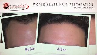 Before and After Hair Transplant-Los Angeles,CA Clinic-www.bhhr.com