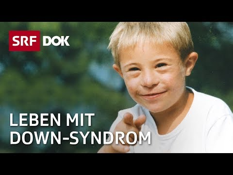 Watch video Leben mit Down Syndrome