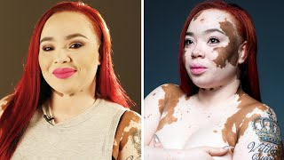 Vitiligo queen came here to SLAY.BoldlyBuzzFeedYellow has changed its name to Boldly. It's the same content you know and love just Bolder. Subscribe for daily videos about beauty, fashion, body positivity, and to join a community of incredible women working to empower and inspire each other.Credits: https://www.buzzfeed.com/bfmp/videos/16118Check out more awesome videos at Boldly!https://bit.ly/2p6kiZuhttps://bit.ly/2nbQuy4https://bit.ly/publyGET MORE BUZZFEED:https://www.buzzfeed.comhttps://www.buzzfeed.com/videoshttps://www.youtube.com/buzzfeedvideohttps://www.youtube.com/boldlyhttps://www.youtube.com/buzzfeedbluehttps://www.youtube.com/buzzfeedviolethttps://www.youtube.com/perolikehttps://www.youtube.com/ladylikeMUSICer1020_04Licensed via Warner Chappell Production Music Inc.Ga042Licensed via Warner Chappell Production Music Inc.Ga053Licensed via Warner Chappell Production Music Inc.min019_117Licensed via Warner Chappell Production Music Inc.nps263_01Licensed via Warner Chappell Production Music Inc.