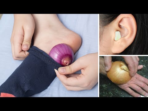 5 Health Conditions Onions Can Help You With
