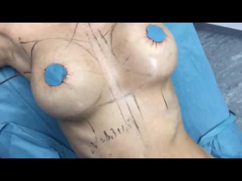 Видео операции увеличения груди и абдоминопластики