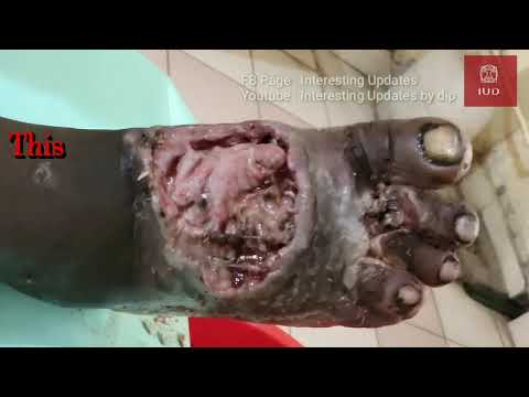 New Video of Maggots wound |  Interesting Updates by dip