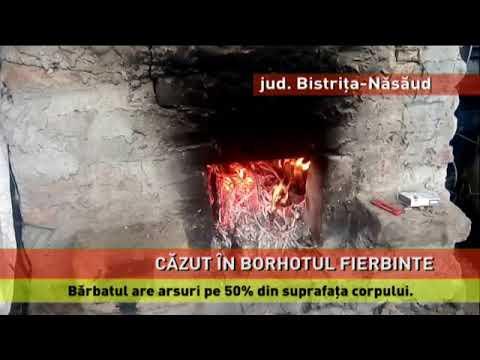 Bărbat cu arsuri grave, după ce a căzut în borhot fierbinte