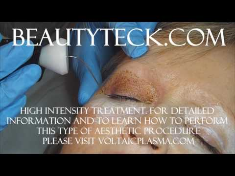 Upper, Lower eyelid Tightening and crow's feet attenuation using Voltaic Plasma, the BeautyTeck.