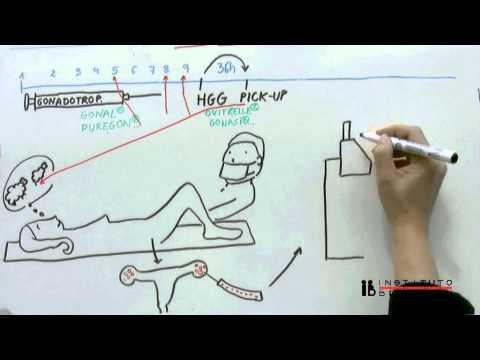 La fecondazione in vitro spiegata con semplicità