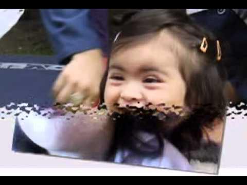 Ver vídeoSíndrome de Down: Puro corazón con patitas