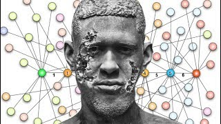 Download Lagu Usher's Herpes Simplex 2 Is SPREADING! Mp3