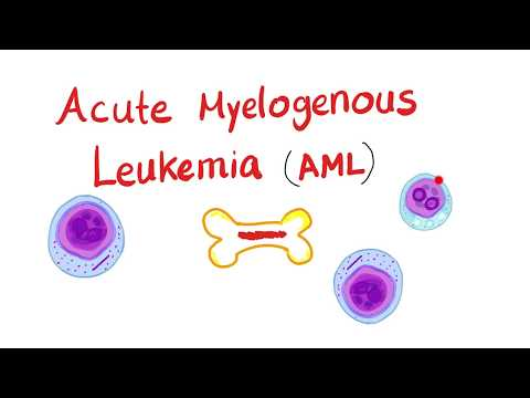 Acute Myeloid Leukemia (AML) | Auer Rods | Myeloperoxidase Positive