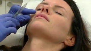 Botox and Lips - Femal Patient