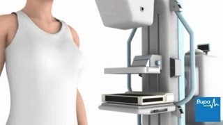 How a mammogram is carried out
