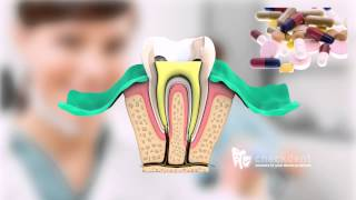 What Is A Root Canal Treatment