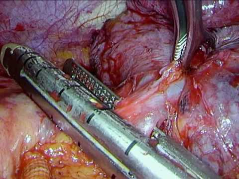 Thoracic Surgery: VATS Left Pneumonectomy